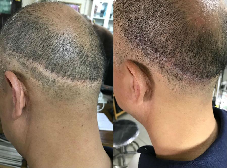 植发后后脑勺丑怎么办6