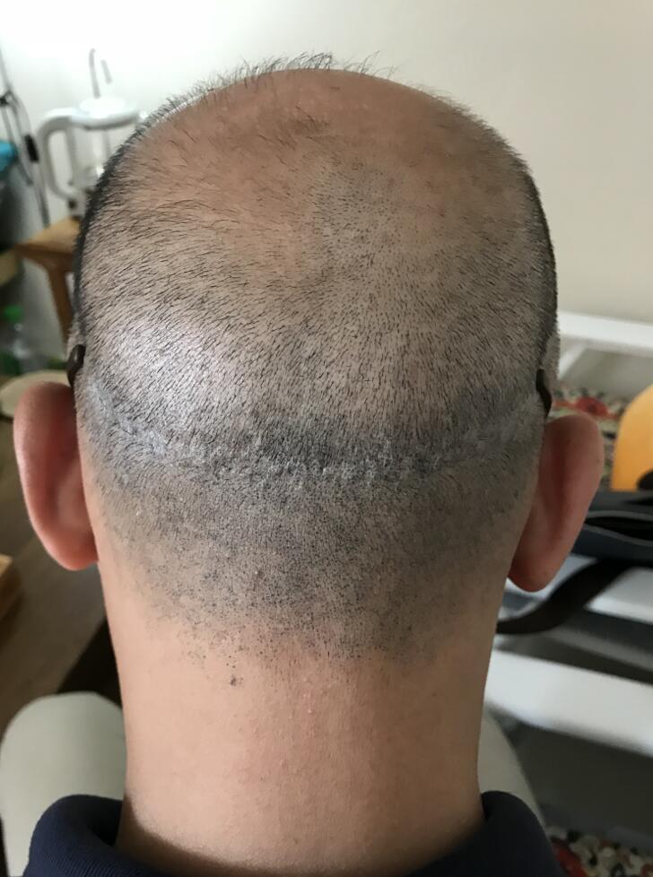 疤痕植发四个月没长
