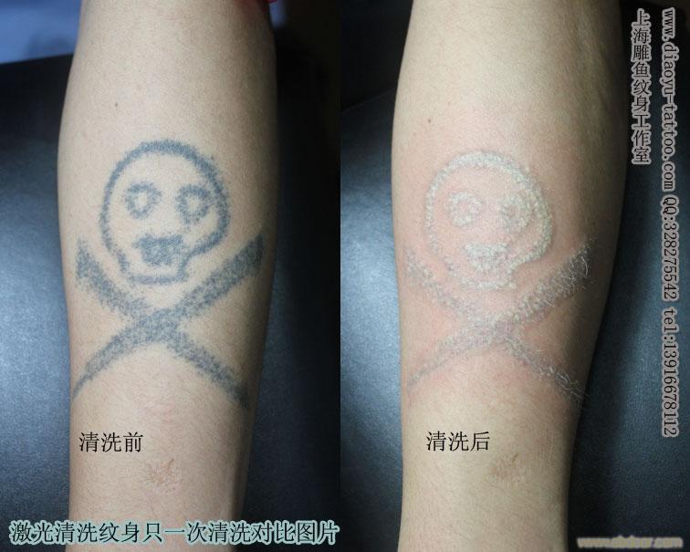 上海清洗纹身哪里最好