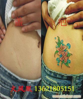 纹身盖疤-上海专业纹身室
