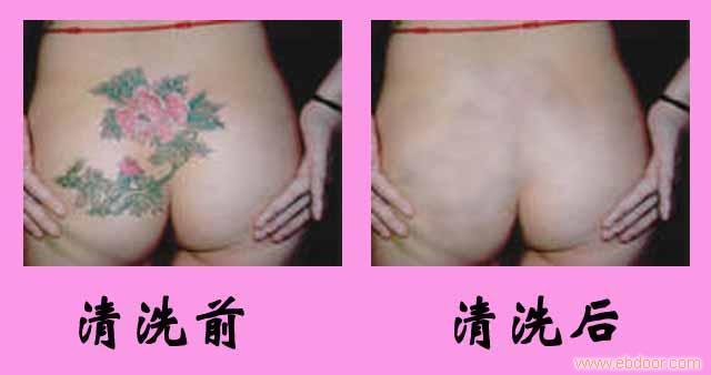 专业清洗彩色纹身--上海清洗纹身