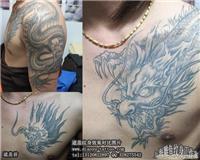 上海普陀区修改纹身哪里最好价格地址