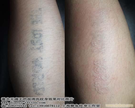 上海洗纹身 请问激光洗纹身到底能洗的干净吗