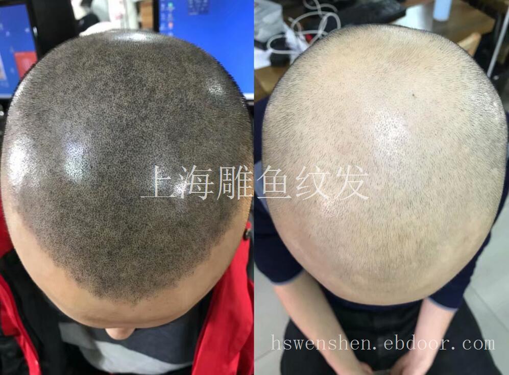 上海纹发哪里好