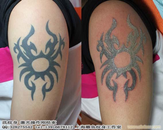 上海松江区洗纹身哪里最好