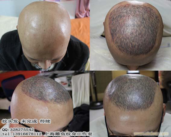 头发头发纹身脱发纹身美发纹身植发纹身上海雕鱼纹身工作室高清图片