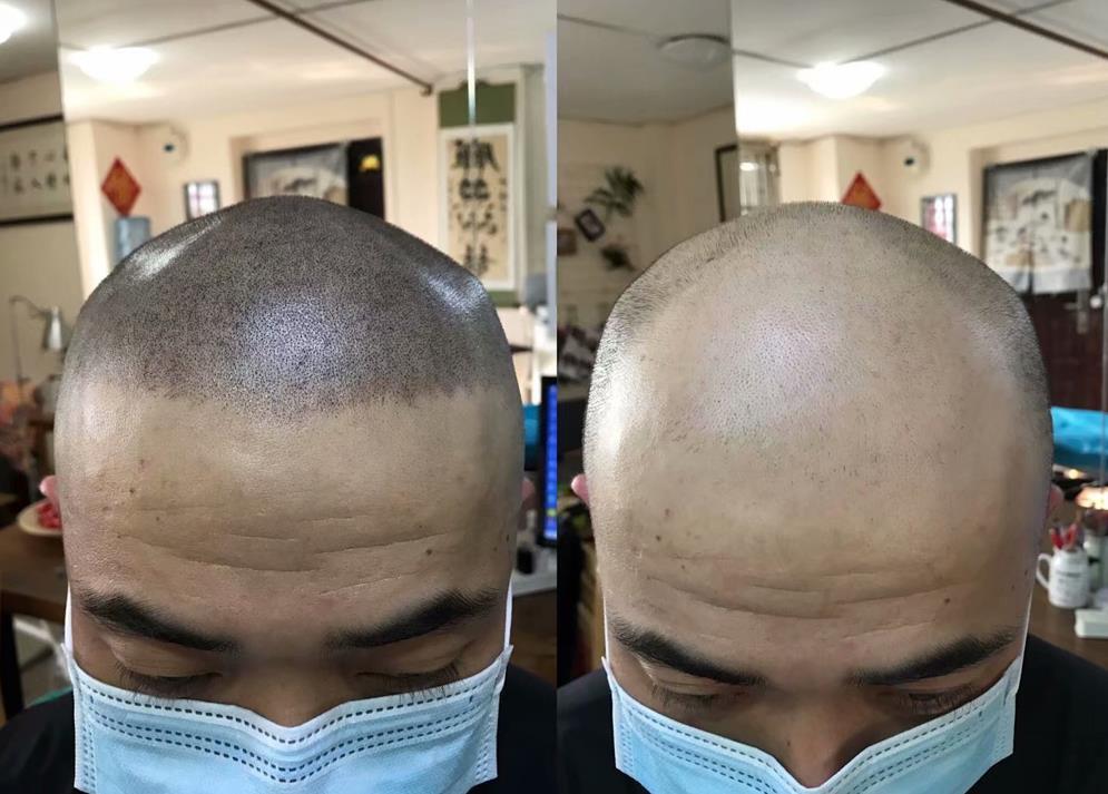 上海纹发专业纹发雕鱼纹发?