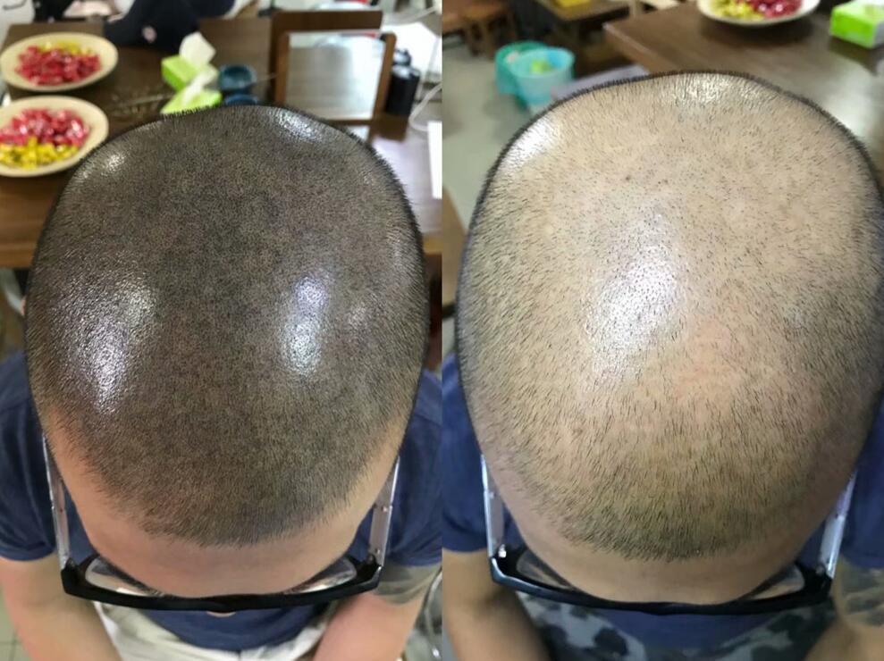 专业纹发纹脱发