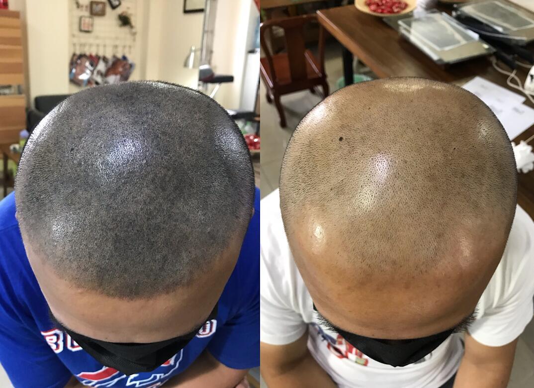 脱发怎么办可以纹发