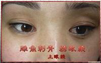 上海专业纹眼线