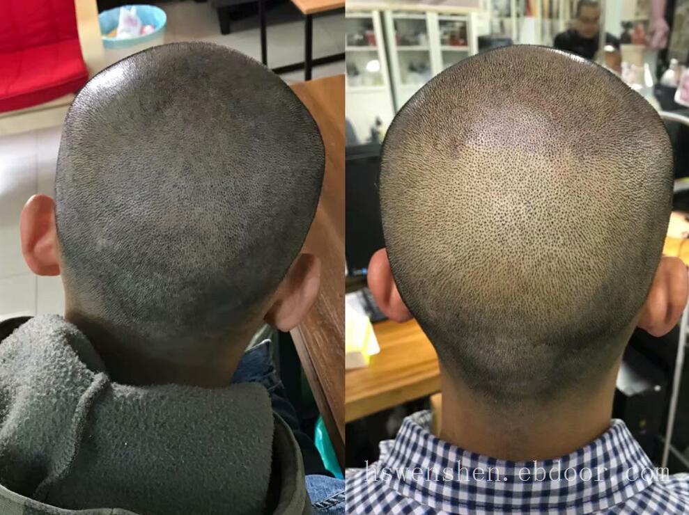 纹发以后的变化?