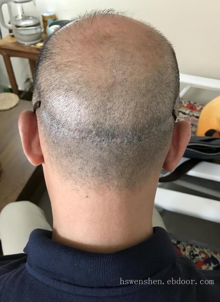 纹发纹头发纹早期植发后留下的取发刀口疤痕