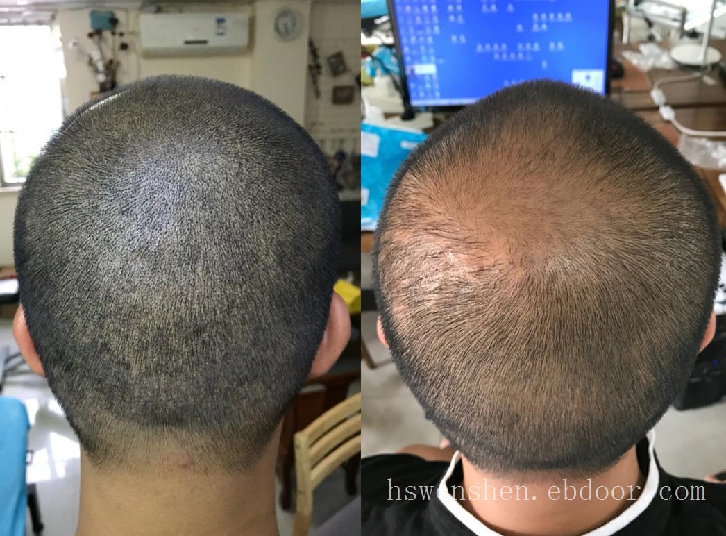 头皮烫伤怎么办?可以纹发吗?