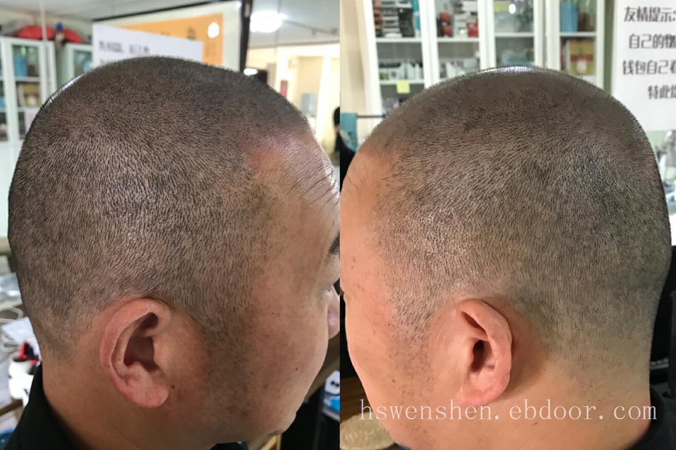 脱发不用怕纹发好方法