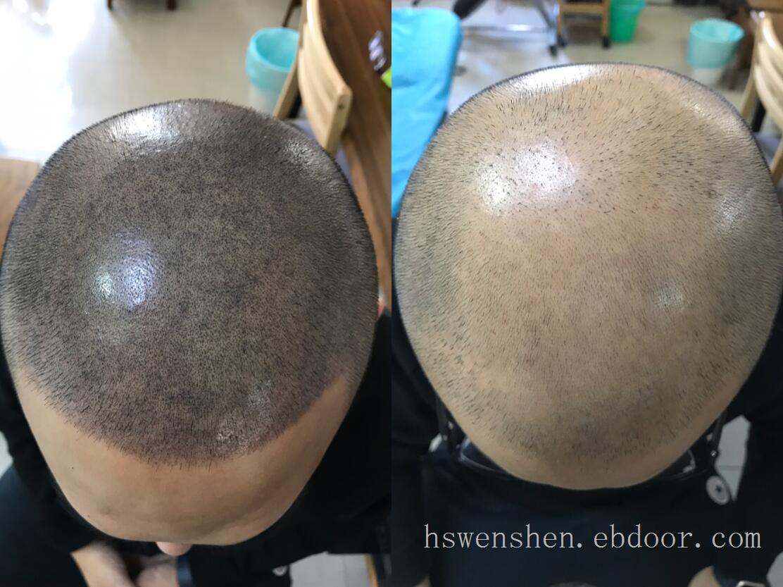 纹发效果纹发过程中取过毛囊可以纹发吗