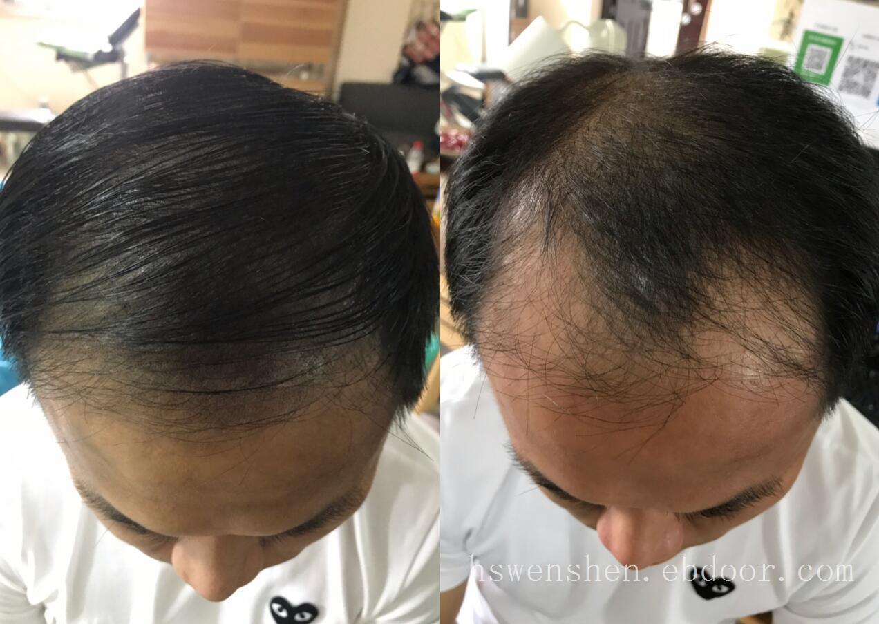头发脱发严重前额基本掉光纹发能有改善吗?