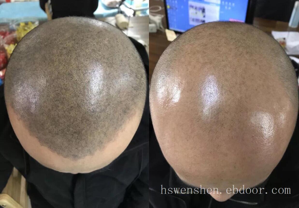 纹发,纹头发,纹头皮,纹发际线,加密发根,究竟是怎么一回事?具体操作是怎样的,双方又是一个怎样的合作