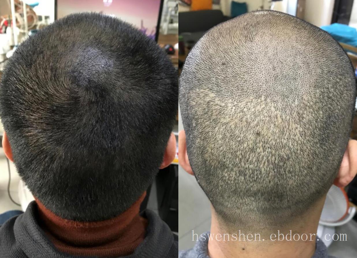 取过毛囊植过发还可以纹发吗?