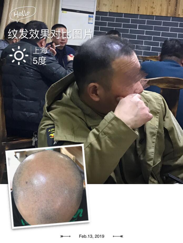 纹发五个月后恢复的效果