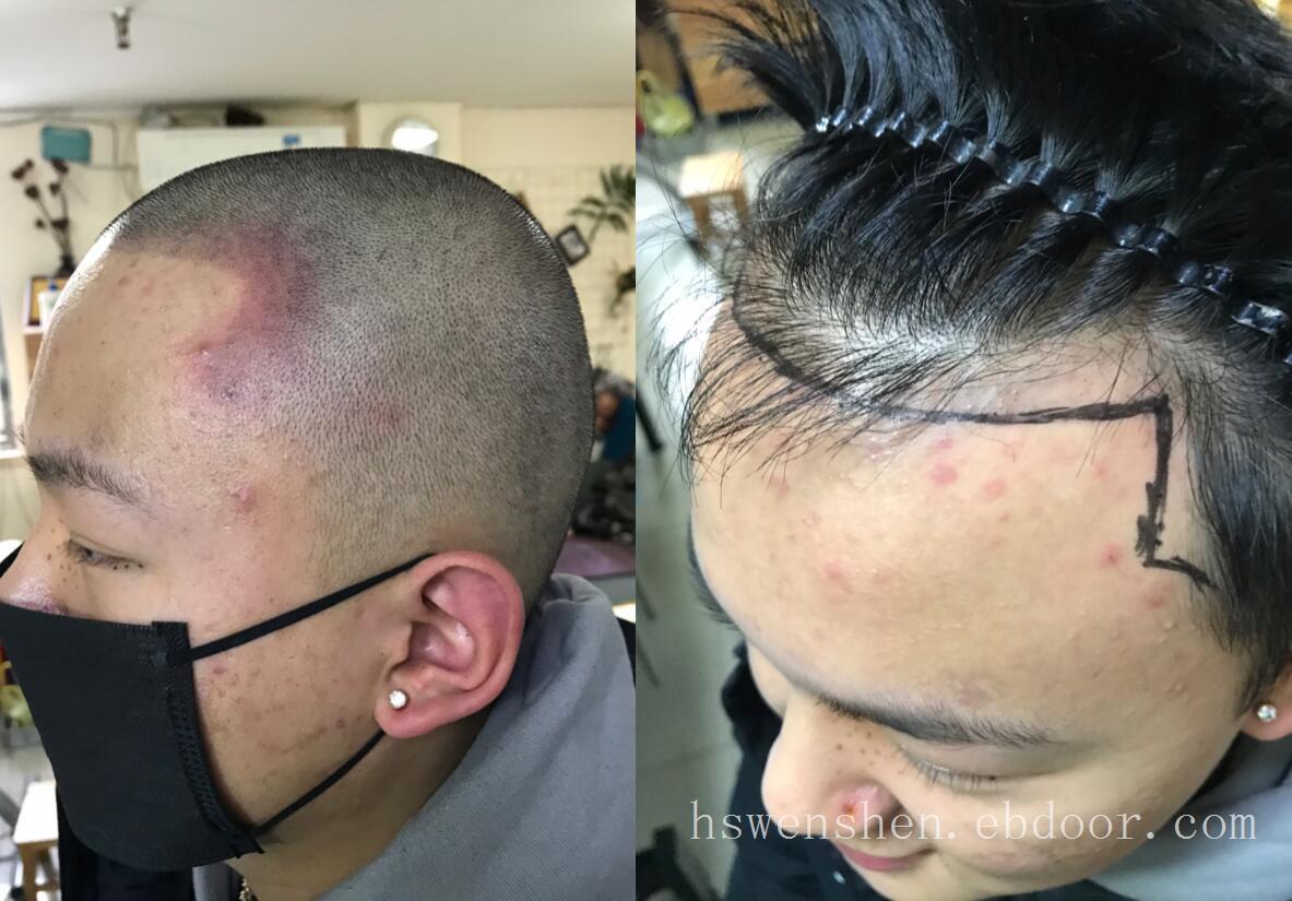 发际线高能纹发来改善吗?
