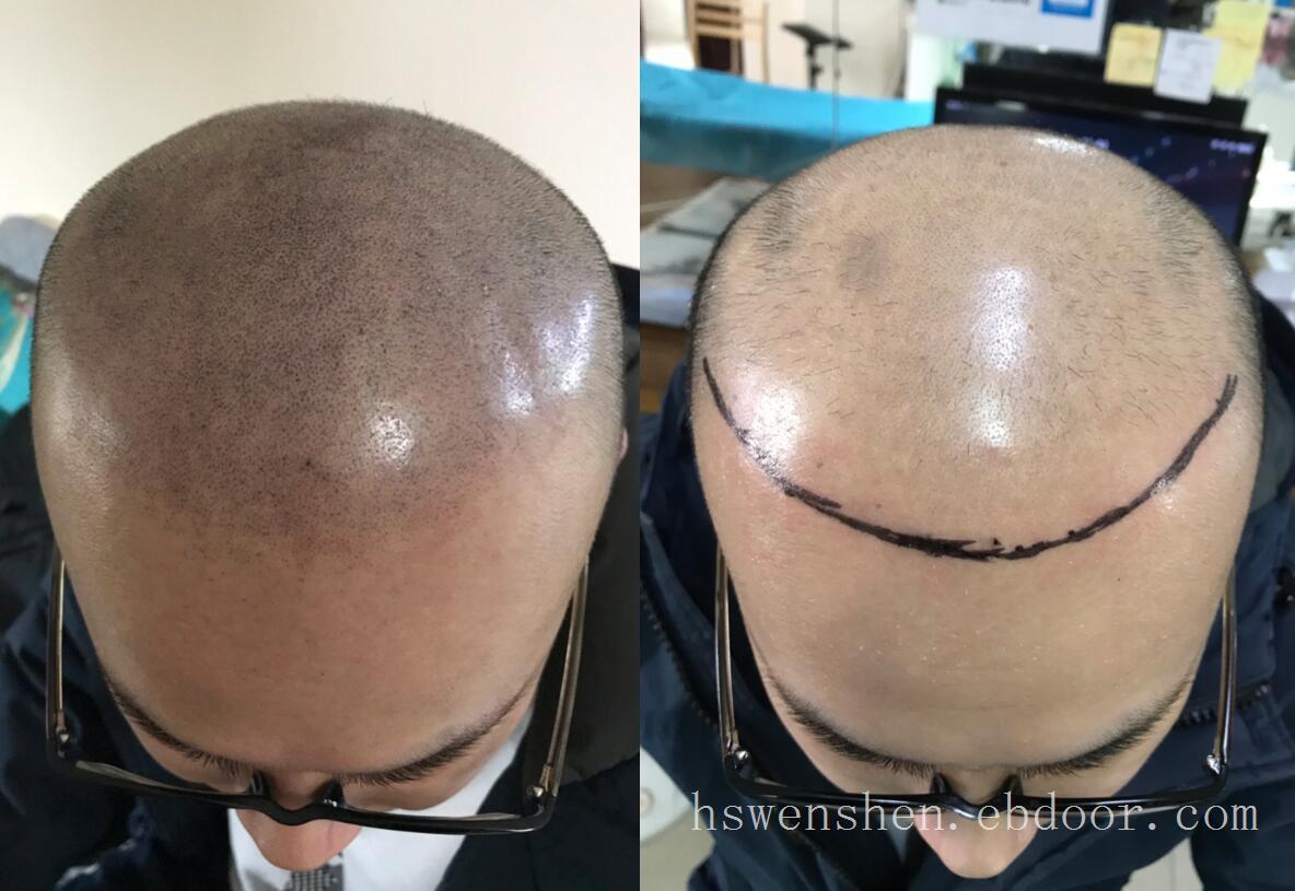 脱发严重前额基本掉光这种情况纹发能改善吗?
