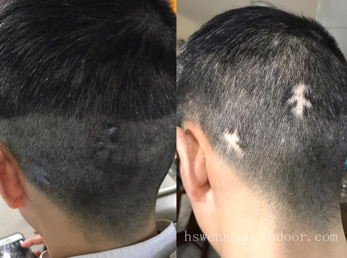 头皮有外伤小疤痕的情况纹发效果不错