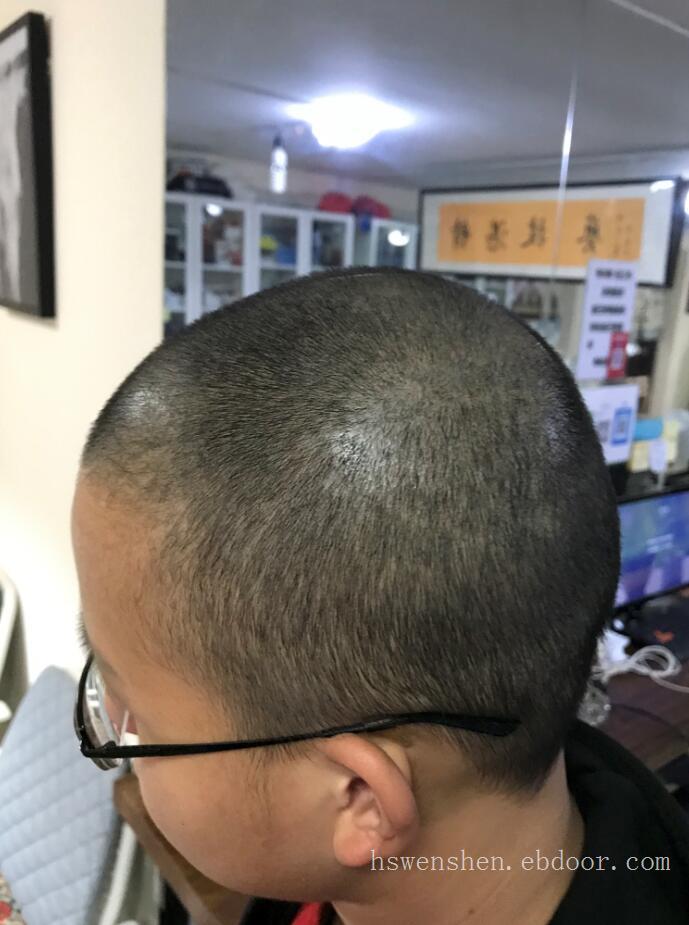 头皮烫伤纹发恢复六个月以后效果