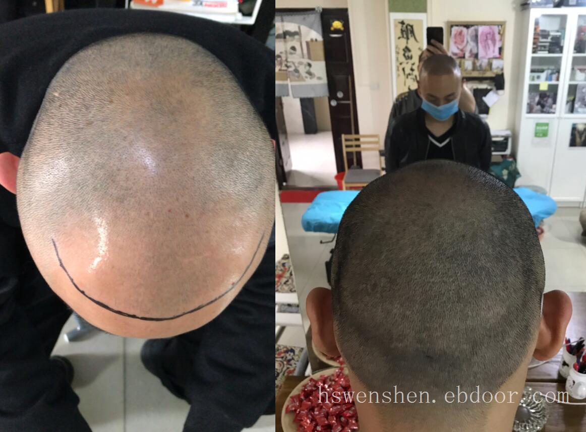 纹发确实可以让自己改变形象心里舒服