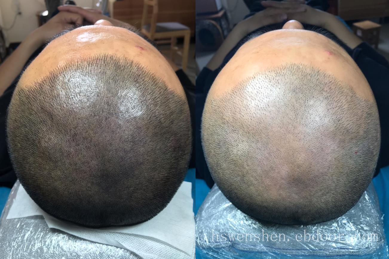 脱发挺严重取过毛囊可以纹发吗?