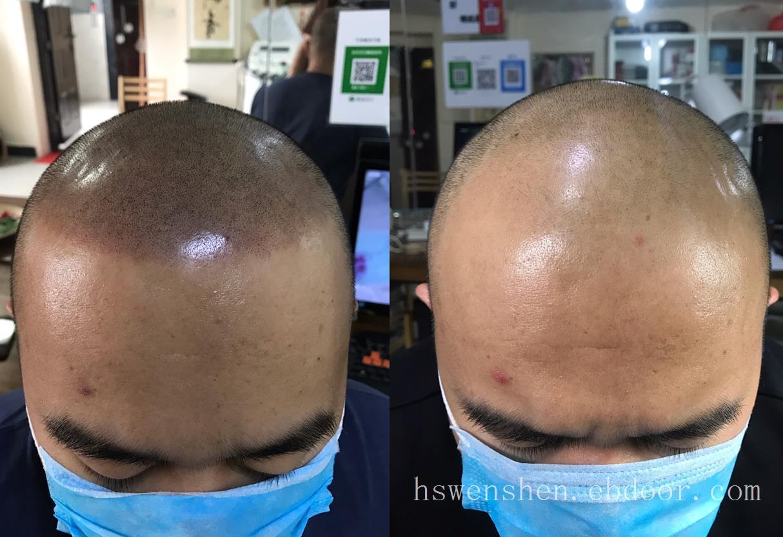 纹发 上海雕鱼纹发