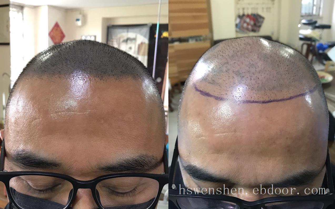 长期脱发怎么办纹发可以改善脱发问题