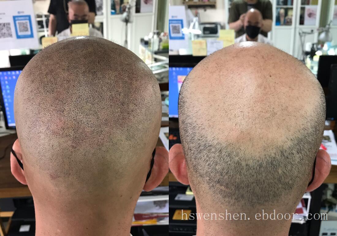 男生脱发很显老纹发可以恢复自信,变得年轻,头发脱发不再是问题了
