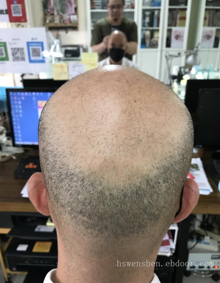 男生脱发很显老,纹发可以恢复自信变得年轻,头发脱发不再是问题了