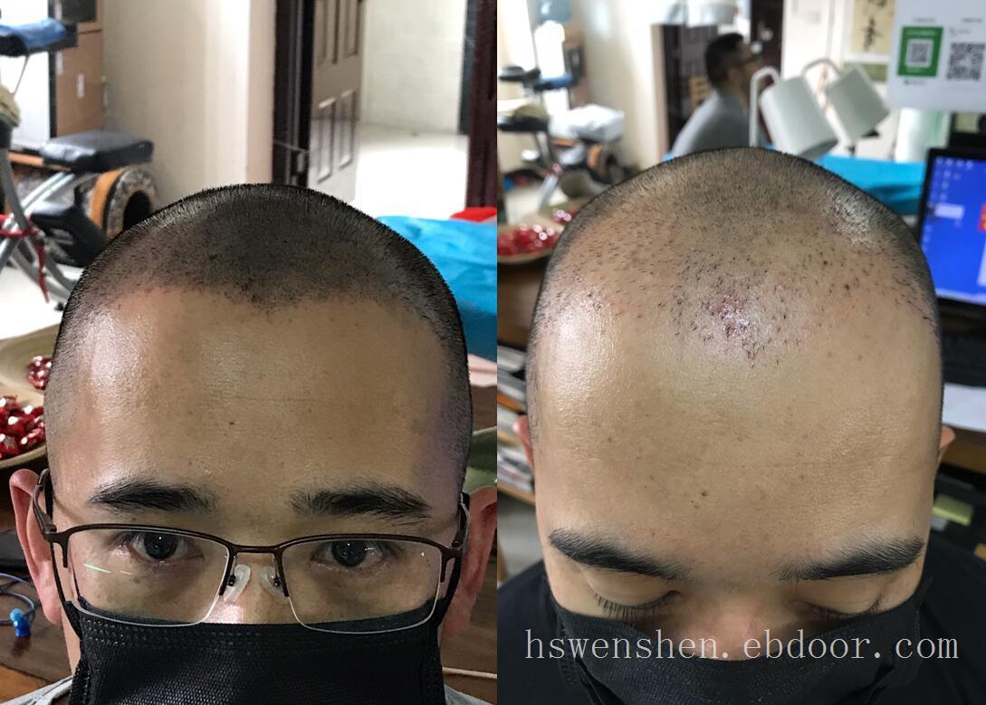 头发脱发纹发之前和纹发之后