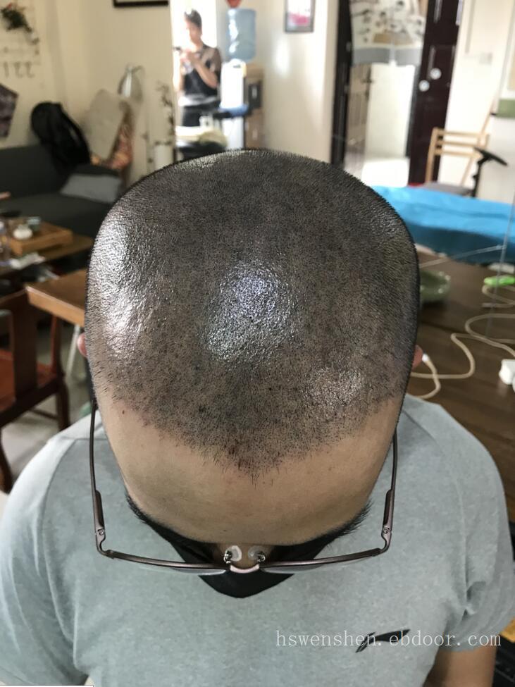 头发脱发纹发前和纹发以后