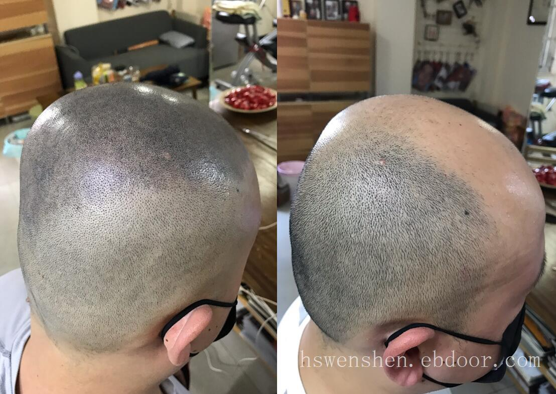 纹发前和纹发以后